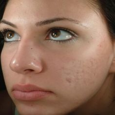 Dr Jegasothy The Top 3 Ways To Get Rid Of Acne Scars Miami Skin Institute By S Manjula Jegasothy Md