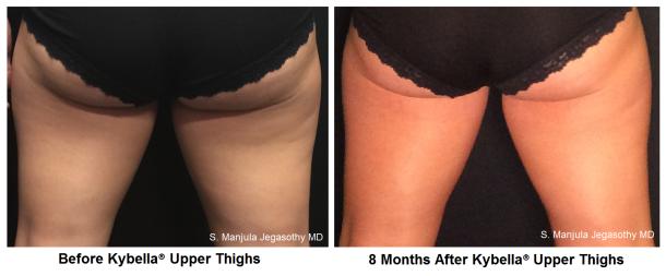 kybella-thighs