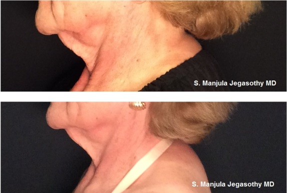 AS- B&A ULTHERA NECK (2 months after 1 tx)