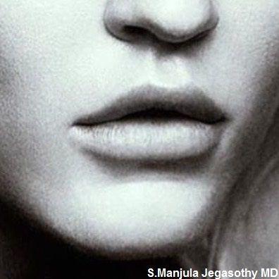 lips 3.jpg
