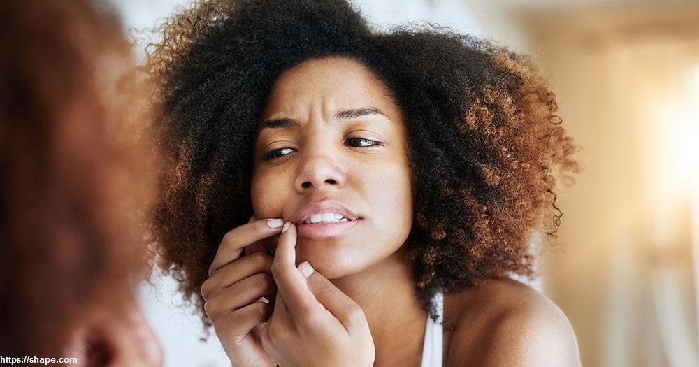 derm-pimple-tips.jpg