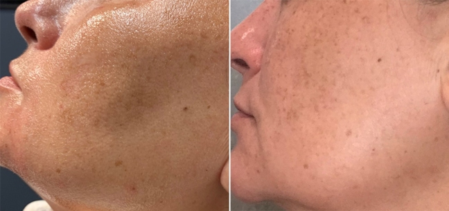 Remove Brown Spots with Fraxel Laser Treatment on the Cheek Area